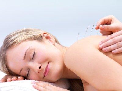 Lifting mit Kosmetische Akupunktur