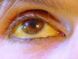 Gelbe Augen: Ursachen und natürliche Behandlung