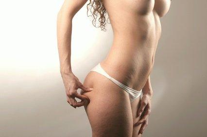 Was zu essen, um Cellulite zu bekämpfen