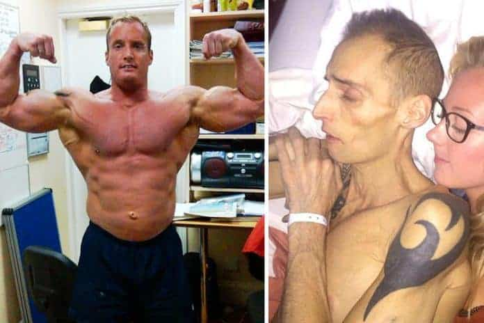 bodybuilder dies because of diet