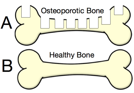 www.muscletesting.com:osteoporosis 3