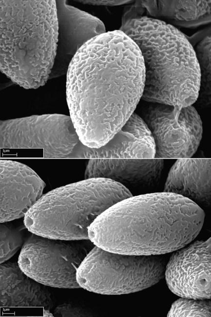 Scanning electron micrographs of the smooth basidiospores of Spongiforma thailandica. Photo by Dennis Desjardin.