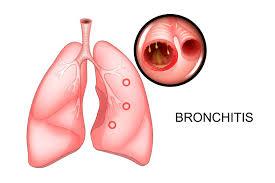 Bronchitis, radang tenggorokan, pancingen atau yg lain?
