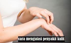 Cara menghilangkan penyakit kusta