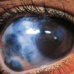 2 cara mudah sembuhkan glaukoma dengan herbal ?