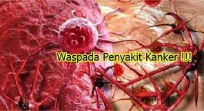 Penyebab kanker wajib anda ketahui !!!