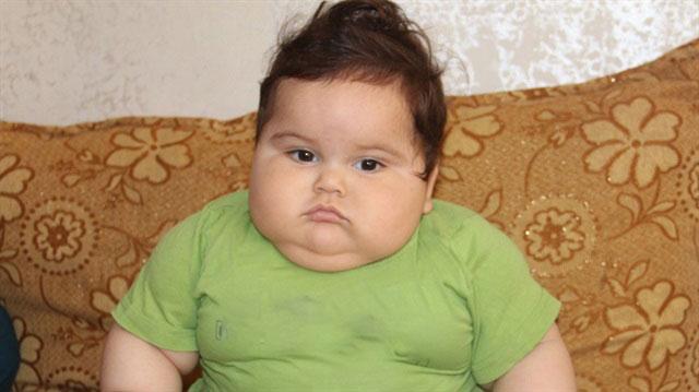 Obez Çocuk