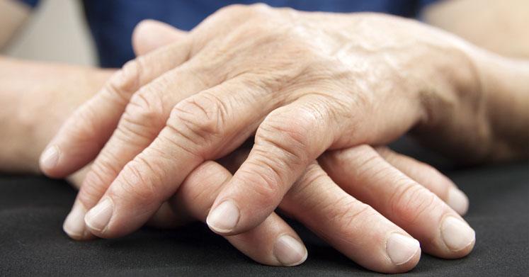 Romatoid Artrit: Romatizmal Ağrılarda Doğal ve Bitkisel Tedaviler