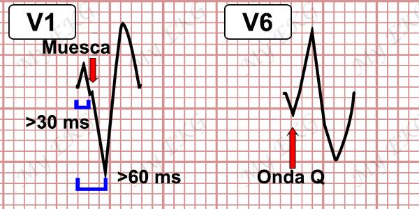 Criterios de Taquicardia Ventricular BRI