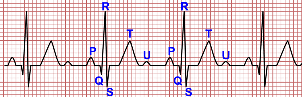 Resultado de imagen para morfología del QRS