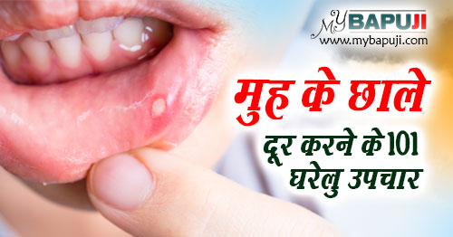 Mouth Ulcers muh ke chale ke Ayurvedic gharelu nuskhe in hindi
