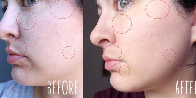 Clear and Brilliant Laser Before and After
