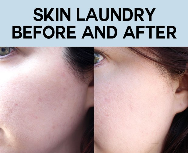 Skin Laundry Results Before and After
