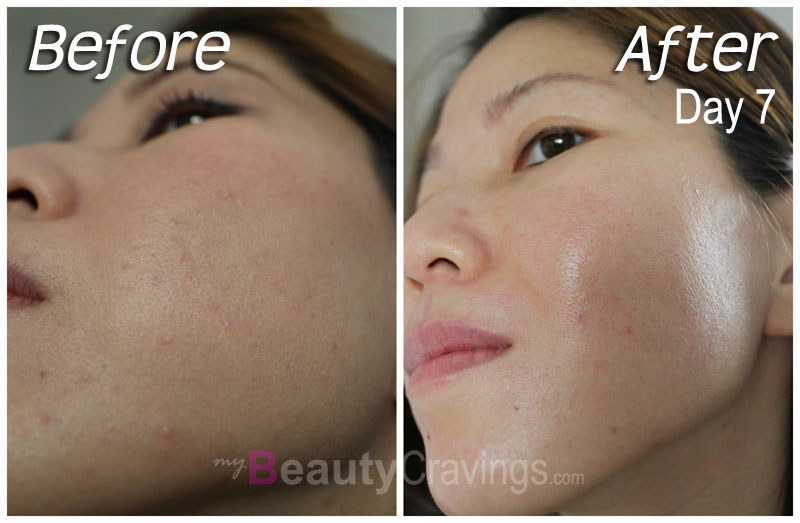 skin laser facial attraction clinic and