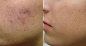 Acne Scar Removal Treatment