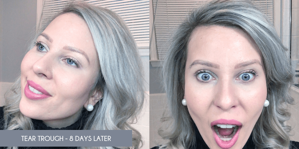 Under Eye Filler: Misconceptions & Results - My Cancer Chic