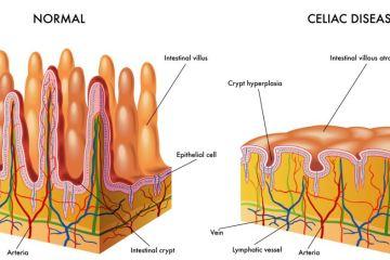 celiac-disease-villus