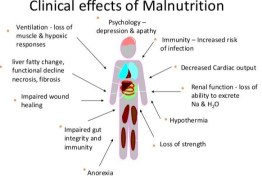 clinical effects of malnutrition