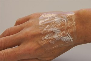 Emla Patches On Hands