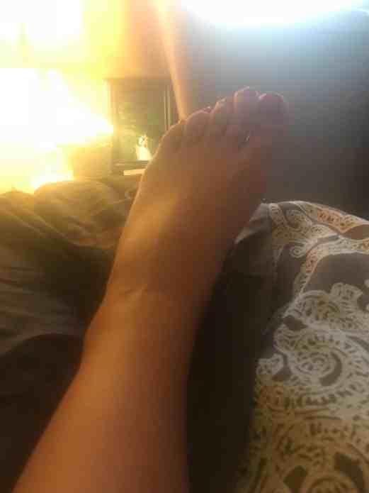 swollen feet bumpdate