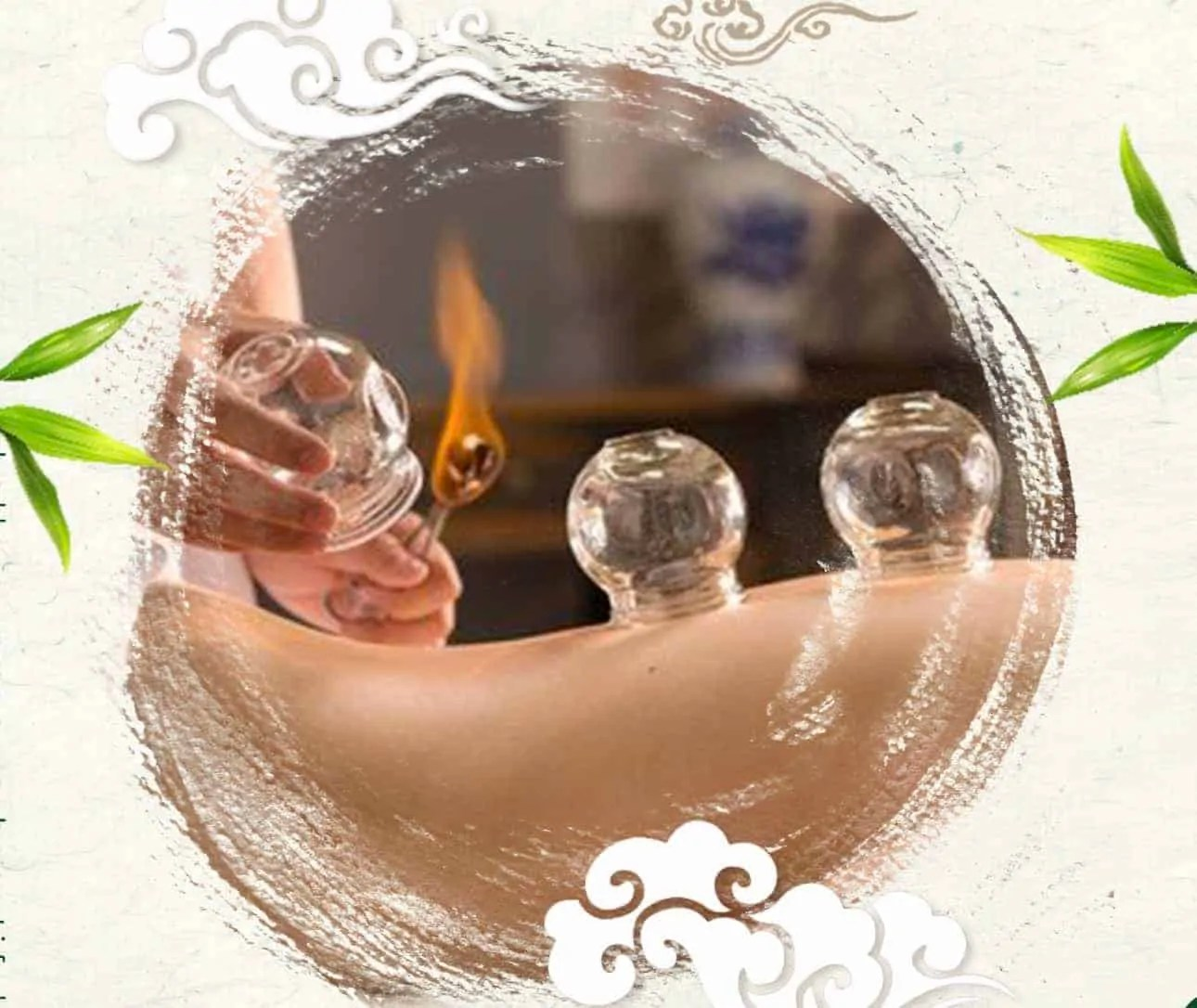How To Effectively Do Cupping Therapy at Home