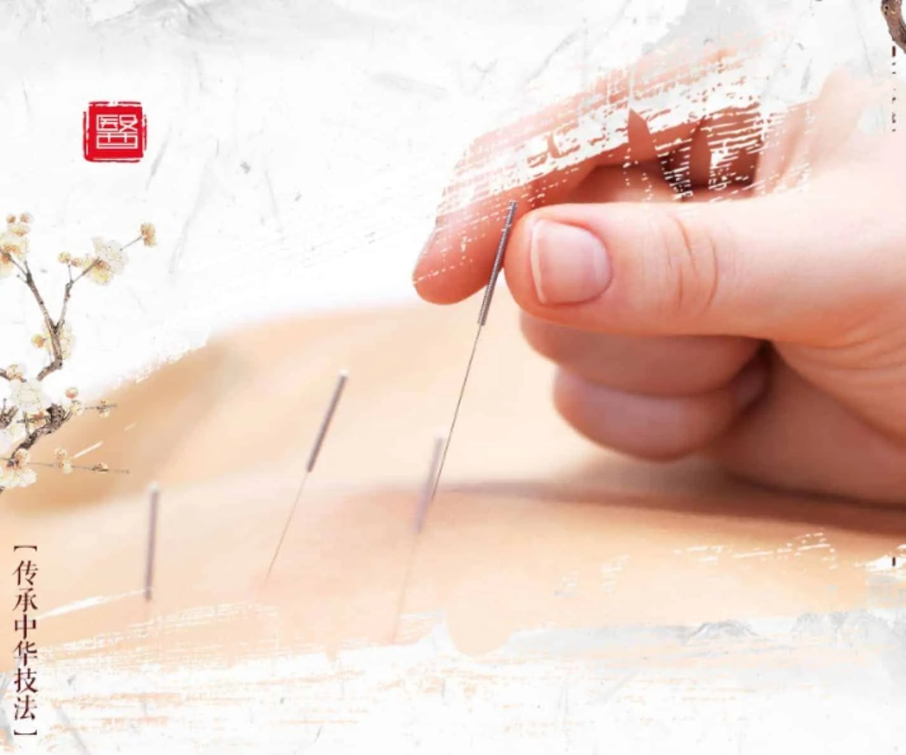 Top Health Benefits of Acupuncture Therapy