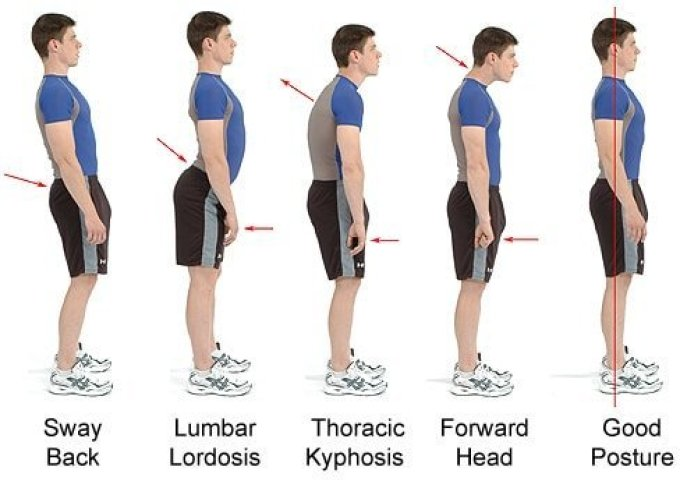 good postures and various types of poor posture