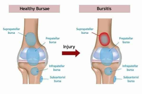 Bursa and bursitis of knee shown