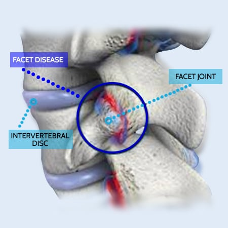 facet hypertrophy in the lumbar spine