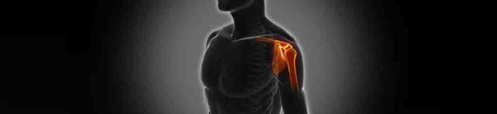 Illustration of joints and parts of shoulder involved in a frozen shoulder