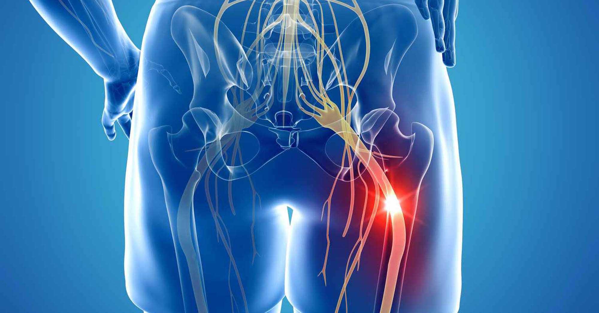 Illustration of a painful sciatica and spondylolisthesis pain
