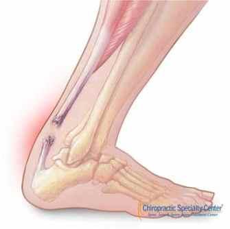 fully torn achilles tendon