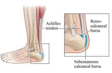 achilles bursitis and ankle joint