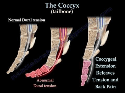 misalignment of coccyx bone or tailbone shown
