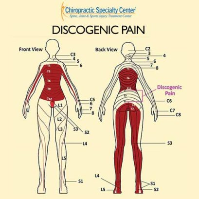 Discogenic pain caused by slip disc