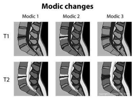 MRI images for Modic type I, II & III in T1 &T2 shown
