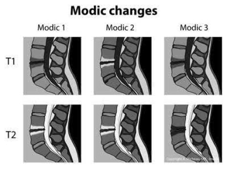 MRI images of Modic endplate types and changes