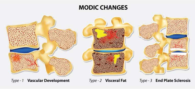 Illustration bone marrow damages in Modic type I, II & II
