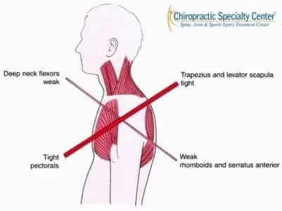 Upper Crossed Syndrome & SHoulder blade pain