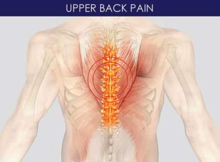 Target are for upper back pain treatment