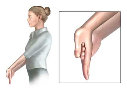 hand exercises to recover from tennis elbow pain