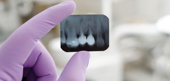Teknologi Futuristik- Global Estetik Dental Care
