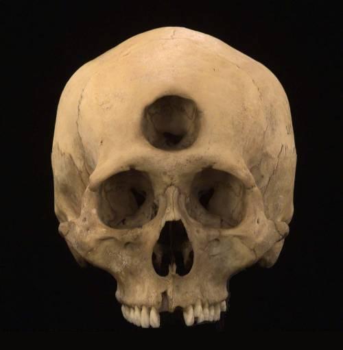 third-eye-skull.jpg