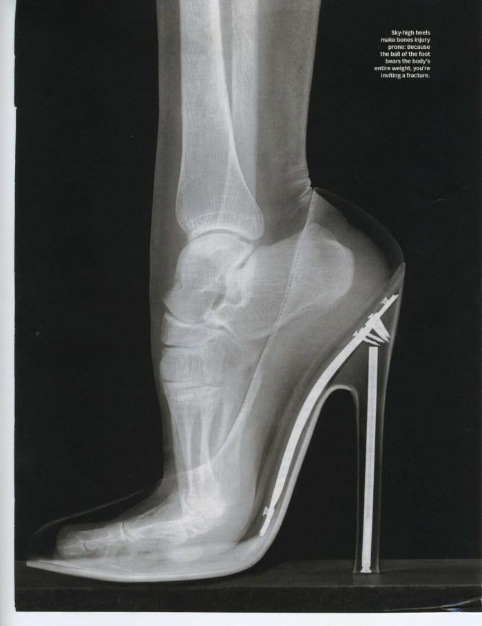 What a foot in a heel looks like.jpg