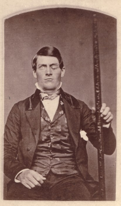 PhineasGage_and_friend.jpg (3 MB)