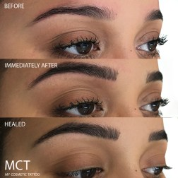 Eyebrow Feathering Tattoo Before, immediately after and healed.