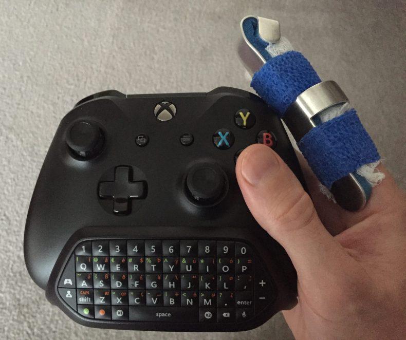 Broken Finger Controller scaled
