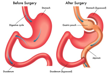 Gastric_Bypass_Illustration