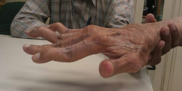 Arthritis Pain: What Supplements Work?