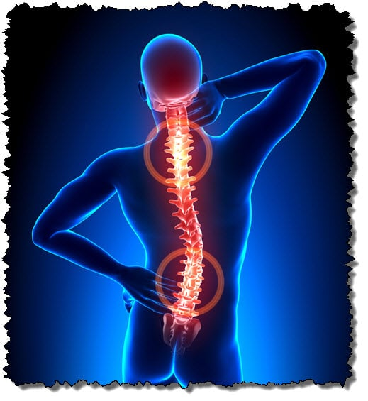 A Back In Need Of Spinal Adjustment From A Chiropractor In West Palm Beach  FL
